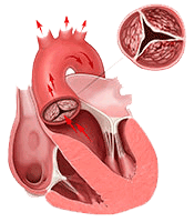 photo of stenotic or calcified aortic valve
