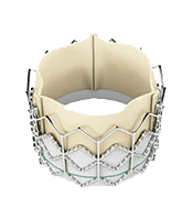 photo of Edwards SAPIEN Transcatheter Heart Valve